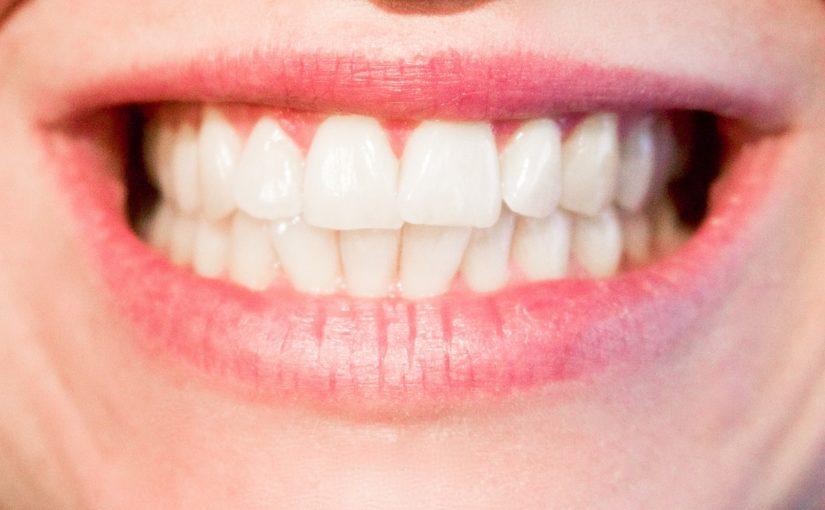 Dzisiejsza technika wykorzystywana w salonach stomatologii estetycznej być może sprawić, że odbierzemy prześliczny uśmieszek.
